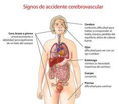 Signos ACV