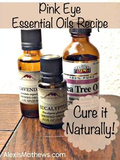 Cure pink eye (conjunctivitis) naturally with this essential oils recipe. Pink Eye Essential Oils, Essential Oil Uses, Doterra Essential Oils, Natural Essential Oils, Young Living Oils, Young Living Essential Oils, Natural Pink Eye Remedy, Natural Remedies, Pink Eye Remedies