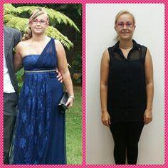 Diana Ares, 28 años. Paciente de #Villagarcia de #Arosa.  Reducimos volumen en brazo y cara, además de adelgazar unos cuantos kg  Ahora està mucho más #vital y #joven.  Muchas felicidades Diana.