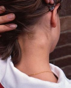 How to reduce swollen lymph nodes in neck?