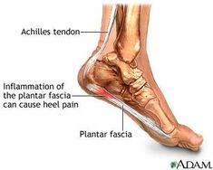 """Patient's Guide to Heel Pain - written by Dr. Michael Zapf---click on the image to read information regarding heel pain, or """"plantar fasciitis""""."""