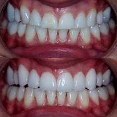 """""""There's always a reason to smile you just have to find it."""" At Hicks Family and Cosmetic Dental we pride ourselves in helping you find your best SMILE. #transformationtuesday #cosmeticdentistry #dentistry #smilemakeover #teeth #dentalcases #dentalcrown #cosmeticdental @dentistry_forum @dentistrymyworld @dentists.doctors @dentalcases @top_dentist by hicksfamilydental Our Cosmetic Dentistry Page: http://www.myimagedental.com/services/cosmetic-dentistry/ Google My Business…"""