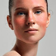 Rosacea Treatment: 6 Natural Ways to Treat Your Skin