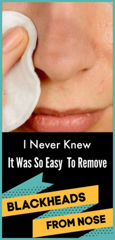 17 Best Remove blackheads from your skin by toothbrush and