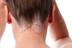 Remèdes naturels pour le traitement contre le psoriasis - Améliore ta Santé