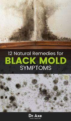 8 Signs You Need a Black Mold Detox | Natural treatments, Natural ...