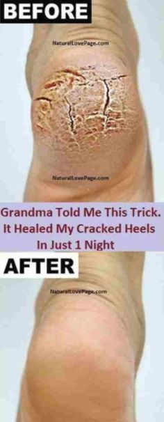 Grandma Told Me This Trick And It Healed My Cracked Heels In Just 1 Night – Stranded Here
