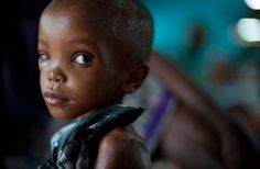 Four-year-old Luli Nunow, suffering from severe acute malnutrition.