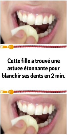 Fitness Tips, Beauty Hacks, Skin Care, How To Plan, Health, Marc Andre, Hacks Diy, Comme, Couture
