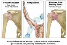 Signs and Symptoms of Frozen Shoulder- this is a really good site for those who think they may have frozen shoulder.. click on it to read all about this very painful shoulder ailment.