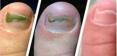 O cravo-da-índia é rico em óleos essenciais, sobretudo eugenol, que tem ação analgésica, estomacal e antisséptica.Riquíssimo em benefícios, hoje você vai conhecer três maravilhosas receitas produzidas com ele:ÓLEO DE CRAVO-DA-ÍNDIA
