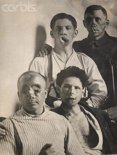 Disfigured Soldiers of World War I - PG3262A - Rights Managed - Stock Photo - Corbis