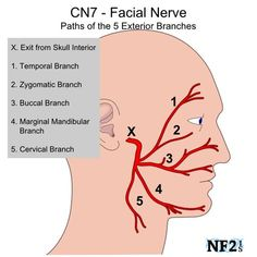 The facial nerve or the seventh cranial nerve has both sensory and motor functions. For sensory it is involved with taste on the anterior portion of the tongue. For motor is controls facial expressions as well as tear nasal and palatine glands. Anatomy Head, Brain Anatomy, Medical Anatomy, Body Anatomy, Anatomy And Physiology, Human Anatomy, Facial Nerve Anatomy, Facial Nerve Branches, Was Ist Pinterest