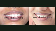 Smile makeovers by expert cosmetic dentist in Bangalore.Cosmetic dentistry, Smile designing, Smile makeover, Smile Sculpting it means sculpting a better smile by changing the alignment, shape, colour and texture of your existing teeth with the help of ceramic/porcelain crowns/veneers. This treatment is not a surgery and your teeth can be straightened or corrected without braces/orthodontic treatment and can be completed in just 5-7 days in 2-3 visits.App +91-0-98450 85230 More at