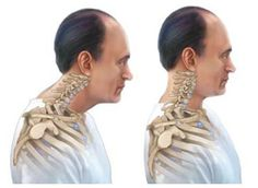 Fix your bad neck posture here are small and easy exercises make life easier, http://lifehacker.com/fix-your-forward-neck-chicken-head-posture-with-these-1647160952?sidebar_promotions_icons=testingon&utm_expid=66866090-67.e9PWeE2DSnKObFD7vNEoqg.2&utm_referrer=https%3A%2F%2Fwww.google.co.in%2F