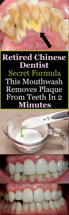 Retired Chinese Dentist Secret Formula This Mouthwash Removes Plaque From Teeth In 2 Minutes - Salud Bucal Teeth Health, Oral Health, Dental Health, Health And Wellness, Health Fitness, Healthy Teeth, Dental Care, Gum Health, Healthy Carbs