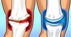 15 étel ízületi fájdalom ellen, amivel kezelheted a gyulladást | Kuffer