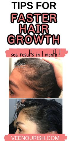 Want to grow hair super fast ? If so, follow these hair growth tips and hair growth hacks for super fast hair growth. Learn how to grow your hair faster overnight with a natural overnight hair loss treatment. These tips for growing out hair faster actually work, click to read more! Hair Loss After Baby, Baby Hair Loss, Hair Loss After Pregnancy, Postpartum Hair Loss, Curly Hair Growth, Fast Hair Growth, Hair Regrowth Tips, Hair Tips, Grow Baby Hair