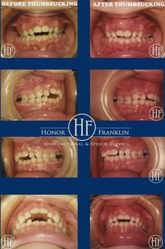 Look at the positive results of a 6 year old female patient's dental occlusion after eliminating a harmful thumbsucking sucking habit at Honor Franklin Myofunctional & Speech Clinic . As an IAOM Certified Orofacial Myofunctional Therapist, Dr. Honor Franklin is an Expert at eliminating such harmful habits in a fun and positive manner with no hurtful oral appliances. Call 972-233-1312 for an appointment!