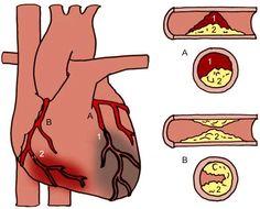 Hartinfarct Beschrijving: Het afsterven van een deel van de hartspier door onderbreking van de bloedtoevoer  Oorzaak: Aderverkalking, alcoholmisbruik, roken, suikerziekte, hoge bloeddruk, hoog cholesterol, inactiviteit, obesitas, stress en hoge leeftijd. Behandeling: stent, dotteren, stolling werende medicijnen en/of trombolyse