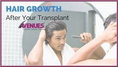 To see the final results of the FUE hair transplant procedure at Hair Transplant Ahmedabad. There is not any magic stick for hair growth and the normal hair growth cycle will continue after the surgery. Most of the patients may observe a sudden shedding of the transplanted hair. According to the Hair Doctor in Ahmedabad, this stage is completely normal and hair will grow again with improved density.
