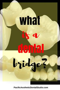 A dental bridge is a restoration that is performed to be a permanent or fixed solution for a missing tooth. If you have a missing tooth, a dental bridge might be right for you. Contact our California Dental Laboratory at today to find out. Dental Design, Dental Art, What Is A Bridge, Tooth Bridge, Dental Bridge Cost, Cracked Tooth, Dental Laboratory, Bridge Design