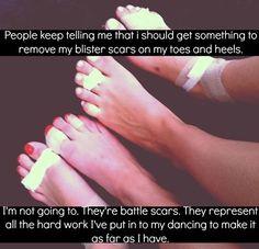 Between ballet, gymnastics, cheer, & Irish dance my feet have their fair share of scars: