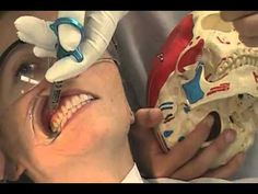 The Vazirani-Akinosi closed mouth mandibular block Oral Surgery, Youtube, Image, Youtubers, Youtube Movies