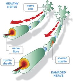 #MultipleSclerosis Could Be Reversed By Activating #StemCells