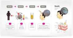 Platelet Rich Plasma Therapy for hair loss restoration DiStefano Hair Restoration is now offering Platelet Rich Plasma Therapy for men and women. - Most Beautiful Hairstyles Prp For Hair Loss, Stop Hair Loss, Vampire Hair, Platelet Rich Plasma Therapy, Hair Transplant Cost, Hair Clinic, Hair Regrowth, Hair Follicles, Hair Loss Remedies