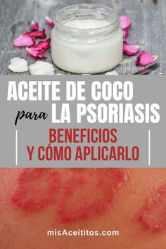El Aceite de Coco para la Psoriasis es un remedio ideal por los ingredientes que lo componen, como los monoglicéridos. Atenúa el picor o escozor y las huellas físicas de esta afección. Descubre los beneficios del Aceite de Coco para el tratamiento de la psoriasis y, úsalo en piel y cuero cabelludo. #rostro #cara #escamas #remediosnaturales #diy #usos #propiedades What Is Psoriasis, Psoriasis Symptoms, Psoriasis Remedies, Skin Care Regimen, Skin Care Tips, Doterra, Plaque Psoriasis, Fatty Fish, Eat Fat