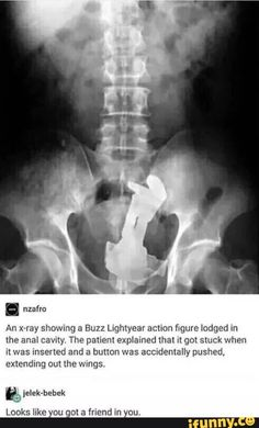 I've heard my medical friends talk about crazy stuff like this. What made this person think Buzz LightYear would like to go on THAT mission! Haha Funny, Funny Cute, Funny Memes, Funniest Memes, Funny Stuff, Jokes, Random Stuff, Random Meme, Funniest Things