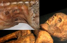 Otzi's tattoos were definitely not random and exhibit a sophisticated understanding of the neural and energy pathways in the human body...