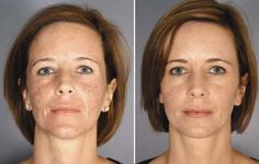 Active FX: A Fractional Laser Skin Resurfacing Procedure Co2 Laser Resurfacing, Skin Resurfacing, Skin Center, Aesthetic Center, Fractional Laser, Tighter Skin, Layers Of Skin, Wrinkle Remover, Prevent Wrinkles