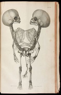 Conjoined at the pelvis...my mind wonders. Oh nevermind.