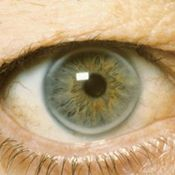 Corneal Arcus, also known as arcus senilis. The ring around the iris is present at birth, but then fades. It often is seen in old-age. It is also an indication of hypercholesterolemia.