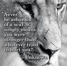 Show your scars