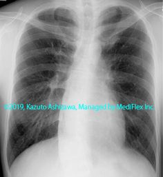 11. その他の肺疾患 症例098:サルコイドーシス 約1年後の胸部単純X線写真,『コンパクトX線アトラスBasic 胸部単純X線写真アトラス vol.1 肺』