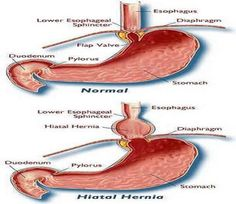 Hiatal Hernia Symptoms - Health, Medicine and Anatomy Reference Pictures