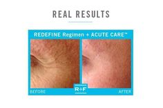 Acute Care Results