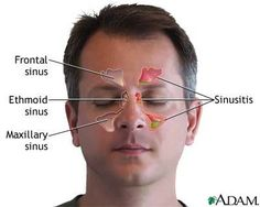 Is it a Sinus Infection? The Causes, Types, and Treatment