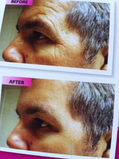 Before and After using OMG! by Instantly Ageless.  https://khoracek.jeunesseglobal.com/