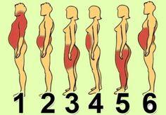 6 типов ожирения: о чём говорят лишние сантиметры на твоем теле