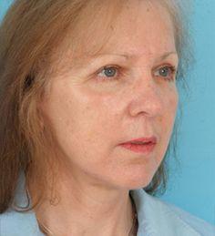 Facelift Patient (after)