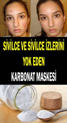 Sivilce ve sivilce izlerini yok eden maske - Health Nacks Beauty Care, Beauty Skin, Beauty Hacks, Hair Beauty, Gymnastics Workout, Health Care Reform, Remove Acne, Healthy Beauty, Dead Skin