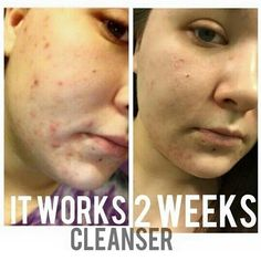 ✌ ❤ Save 40% today!!! Ask me how! Call/text SKIN CARE to (562)968-7494  visit http://laterewraps.myitworks.com #haveyoutriedthatcrazywrapthing #itworksglobal #health #livewell #natural #botanical #remedies #California #LosAngeles #USA #London #Europe #Australia #Canada #Germany #Denmark #Sweden #Switzerland #Spain #NewZealand #Whittier #UptownWhittier #laterewraps #sexy #valentinesday #resolutions #2015