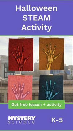 "Your students will find out why we have bones and then combine science with art by creating a beautiful ""X-ray"" of their hand. 4th Grade Science, Kindergarten Science, Elementary Science, Science Experiments Kids, Science Classroom, Teaching Science, Science For Kids, Art Classroom, Classroom Activities"