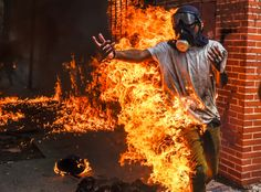 The explosion of a motorbike gas tank ignited a demonstrator's clothes Wednesday during protests of President Nicolás Maduro in Caracas, Venezuela.