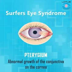 Book your appointment with the best eye specialist in Ernakulam, Coimbatore, Salem, Tirupura, Mettupalayam Common Eye Problems, Eyes Problems, Eye Pain, Eye Infections, Itchy Eyes, Light Sensitivity, Eye Treatment, Cool Eyes, Appointments