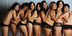 The scars, bumps, and stretch marks that make these women stunning.